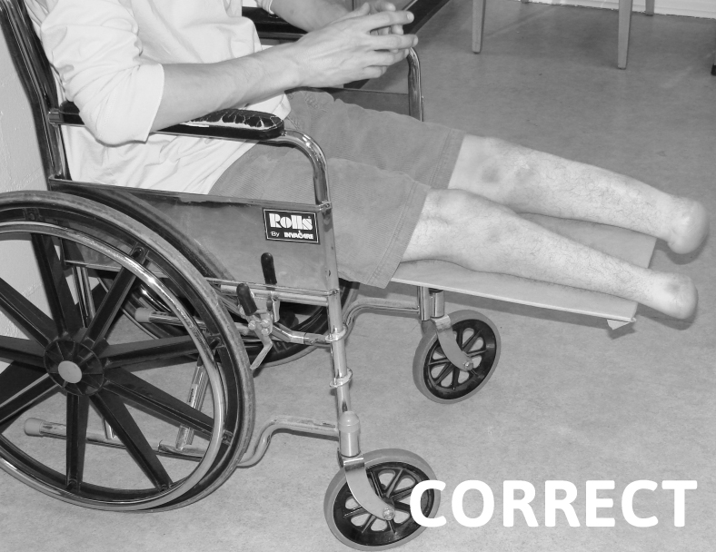 Correct Wheelchair Positioning for Transtibial Patient